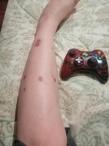 Looking for dragon ball ideas to cover some scars, I am bipolar and when I get really bad I burn myself. Please share pictures or tattoos to get an idea (Pic of scars with control for scale)