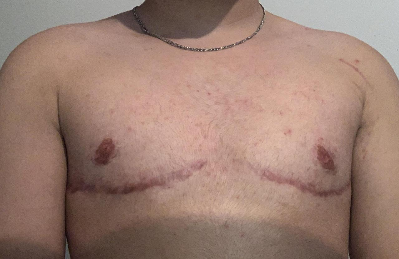 any tattoo ideas? i'm over a year post op and have accepted that my scars will most likely not be fading. i'd like to cover them up, does anyone have suggestions?