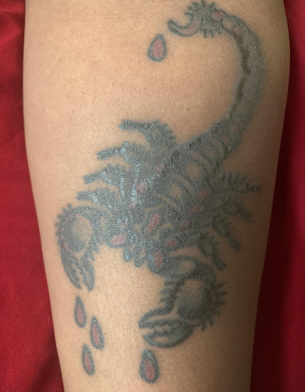 Thoughts on my traditional scorpion (done July 26)? I've been contemplating going back to my artist to have him check it out. The tail's blown out and a good portion is still raised/scarred...